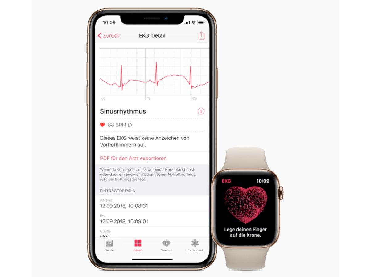 EKG-Messung mit iPhone und Apple Watch