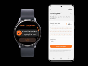 Samsung Galaxy Watch Update für EKG-Funktion